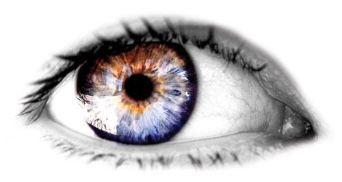 تنبلي چشم - Amblyopia
